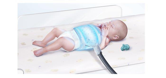 Phototherapy Biliblanket For Neonatal Jaundice